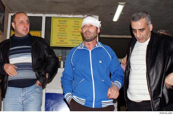 Ambushed: Investigative journalist becomes victim of violent attack